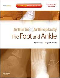 Arthritis & Arthroplasty: The Foot and Ankle