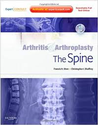 Arthritis & Arthroplasty: The Spine
